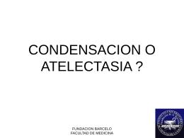 CONDENSACION O ATELECTASIA - Pixelnet e