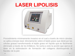 LASER LIPOLISIS