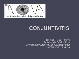 CONJUNTIVITIS - .:: INOVA Vision Institute ::.