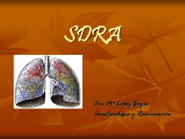 SDRA - AnesCyl.com