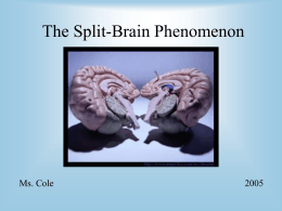 The Split Brain Phenomenon Presentation