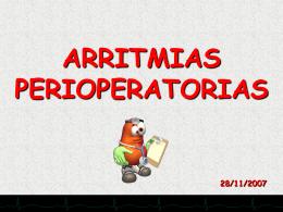 ARRITMIAS PERIOPERATORIAS