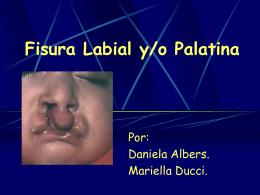 Fisura Labial y/o Palatina
