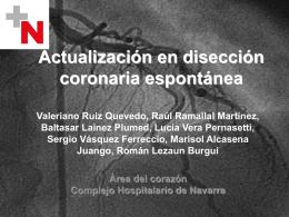 Actualización en disección coronaria espontánea