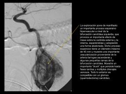 Presentación 4: Glomus carotídeo izquierdo. Arteriografía