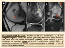 Figura 23: NO DIAGNÓSTICO ESPECÍFICO: osteoblastoma fémur