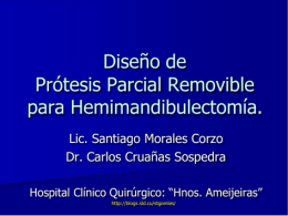 Diseño de prótesis parcial removible. Hemimandibulectomías.