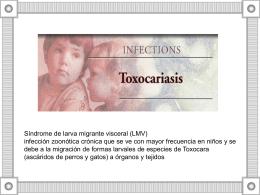 Toxocariasis y ECV TM. MG. Sylvia Vidal F.