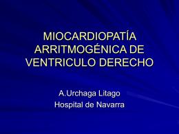 MIOCARDIOPATÍA ARRITMOGÉNICA DE VENTRICULO DERECHO