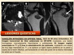 LESIONES QUÍSTICAS: ganglión intraóseo en tibia, quiste simple