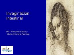 Casos e imágenes de Invaginacion intestinal