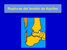 09- Rupturas del tendón de Aquiles - lerat