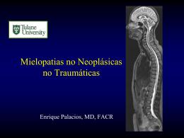 mielopatías no neoplásicas
