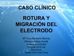 Caso clínico: Rotura y migración del electrodo