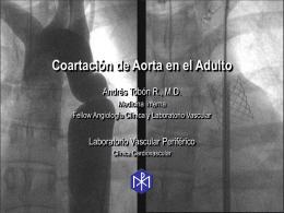 Coartación de Aorta en el Adulto