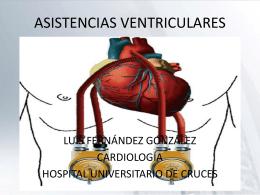 ASISTENCIAS VENTRICULARES