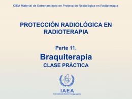 Optimización de la protección en la braquiterapia