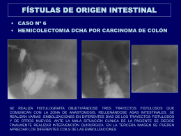 fstulas_de_origen_intestinal_copy5