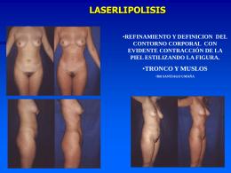 laserlipolisis - dr. santiago umaña díaz