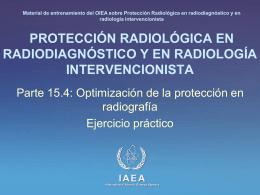 15. Optimización de la protección en radiografía: Parte 4