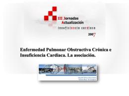 EPOC e IC. La asociación Dr. Fernando J. Ruiz Laiglesia