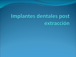 Implantes dentales post extracción