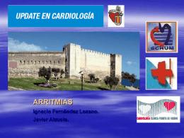 Marcapasos - CardioAtrio