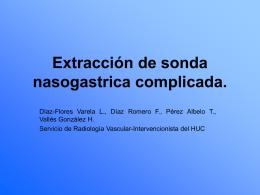Extracción de sonda nasogastrica complicada.