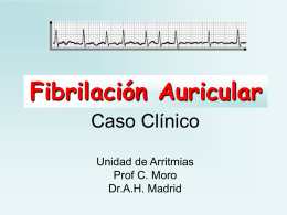 Fibrilación Auricular Paroxística - Cardiología en Madrid