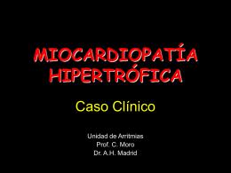 miocardiopatía hipertrófica - Cardiología en Madrid