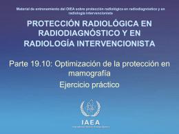 19. Optimización de la protección en mamografía: Parte 10