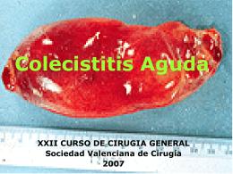 Manejo de la colecistitis aguda - Sociedad Valenciana de Cirugía