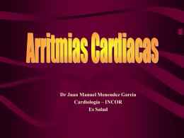 Arritmia cardiaca