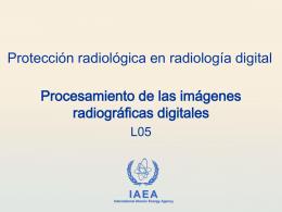 05. Procesamiento de las imágenes radiográficas digitales