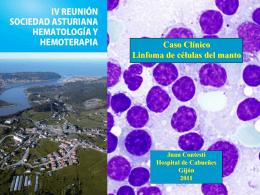Caso Clínico Linfoma de células del manto