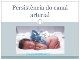 Persistência do canal arterial