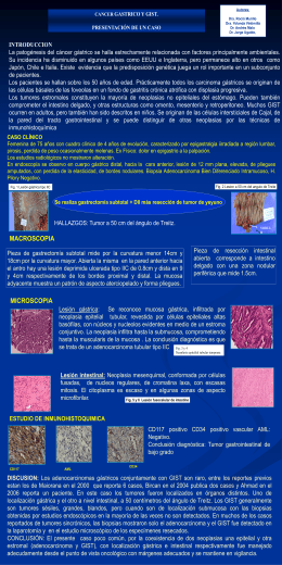 INFORMESE SOBRE EL CANCER GASTRICO
