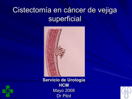 Cistectomia_en_cancer de_vejiga superficial
