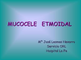 Mucocele Etmoida