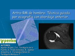 Artro-RM de hombro: Técnica guiada por ecografía con abordaje