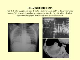 Hemangiopericitoma niña de 13 años que presenta una masa de