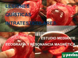 lesiones quísticas intratesticulares