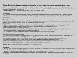 Displasia-miocardiopatía arritmogénica de ventrículo derecho, a