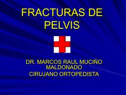 FRACTURAS DE PELVIS.