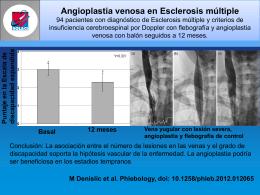 Angioplastia venosa en Esclerosis múltiple