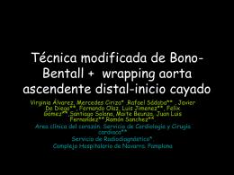Técnica modificada de Bono-Bentall + wrapping aorta ascendente