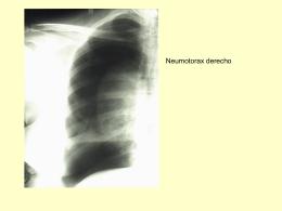 Contusión pulmonar derecha hemitórax derecho