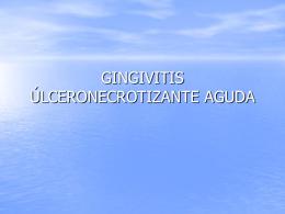 Gingivitis ulceronecrotizante 2004