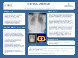 sindrome antisintetasa