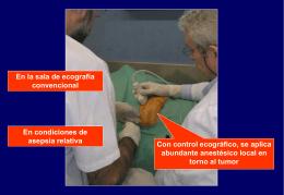 procedimiento_copy16